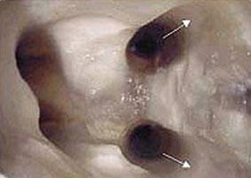 определение длинны канала зуба