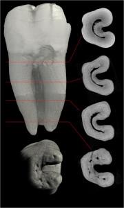 корінь зуба в розрізі